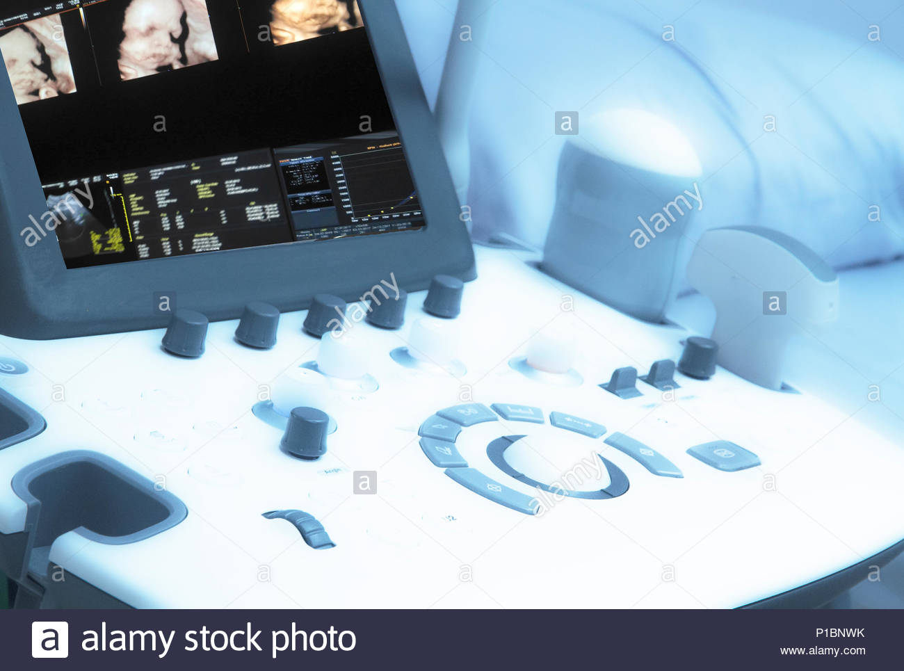 Drak and Blurry Medical ultrasound machine with 3D/4D image and linear probes in a hospital diagnostic room. Modern medical equipment, preventional me - Stock Image