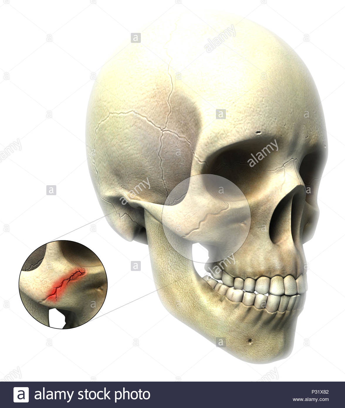 Zygomatic Fracture Stock Photo 208410946 Alamy