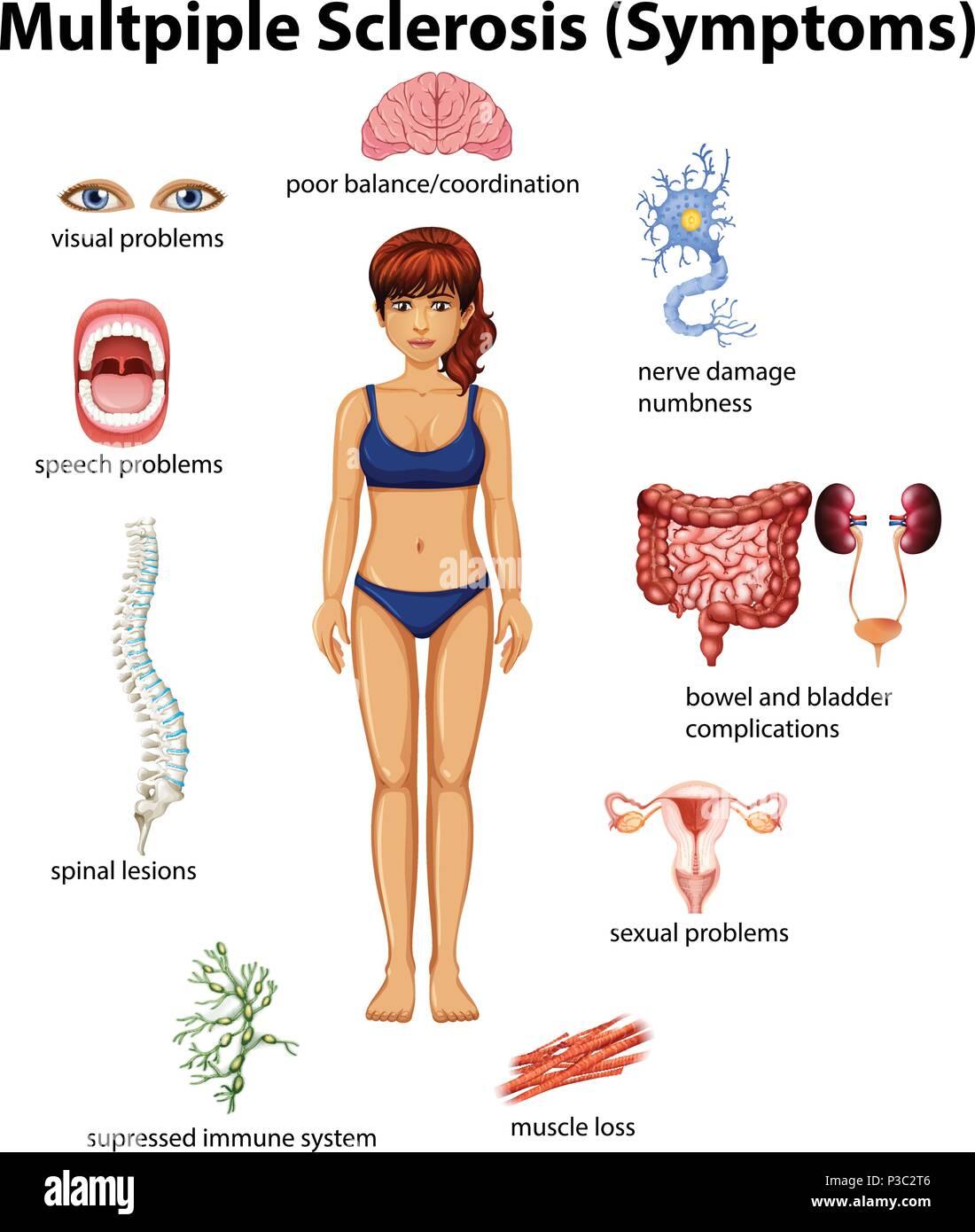 Multiple Sclerosis Illustration Stock Photos & Multiple