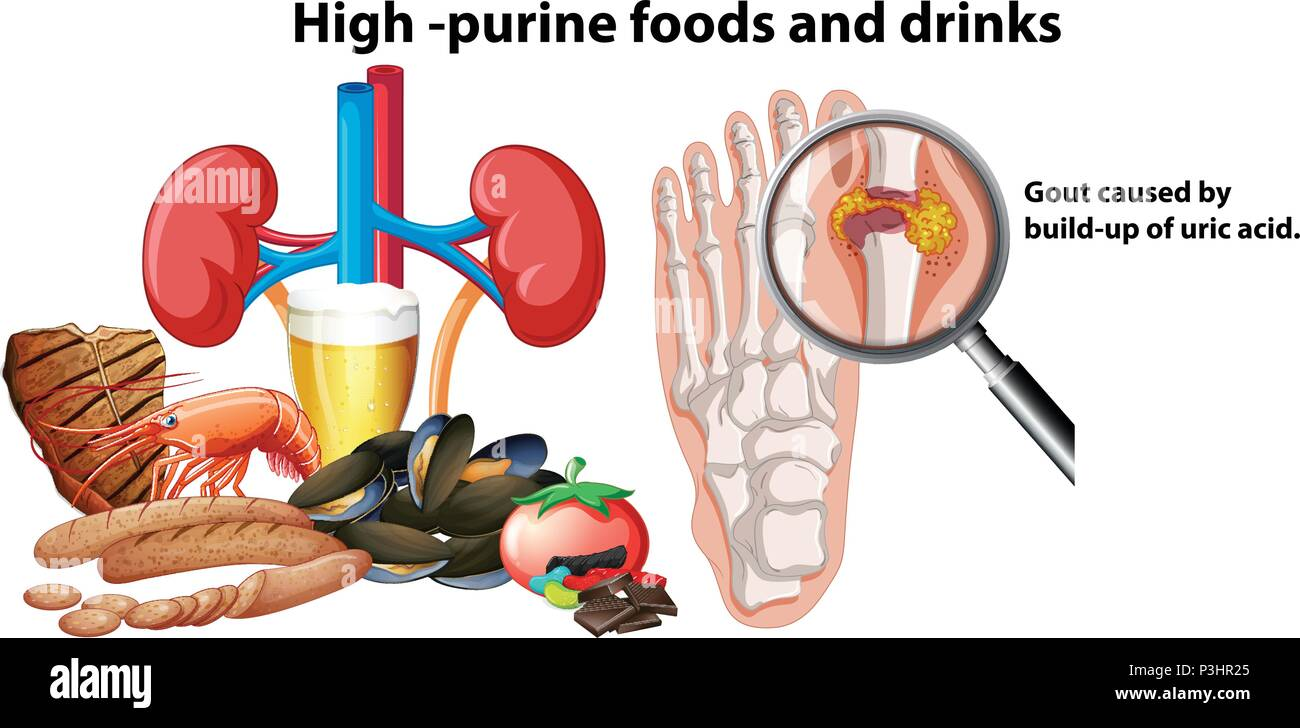 High-Purine Foods and Drinks illustration - Stock Image