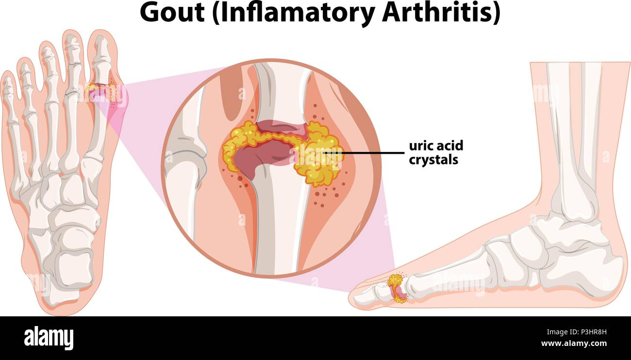 A Human Anatomy Of Gout Illustration Stock Vector Image Art Alamy