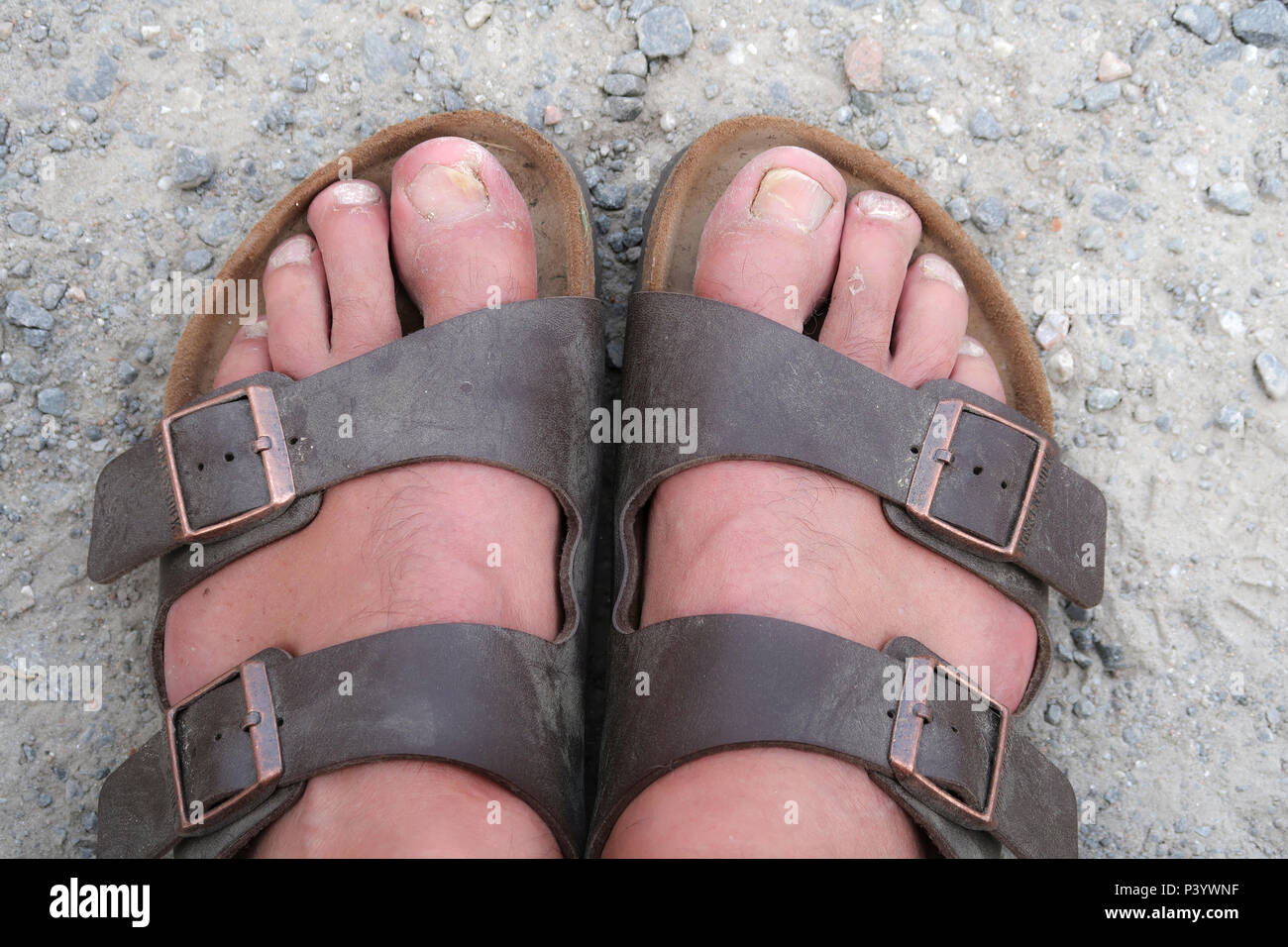 0f12d8be9 Ugly Feet Stock Photos   Ugly Feet Stock Images - Alamy