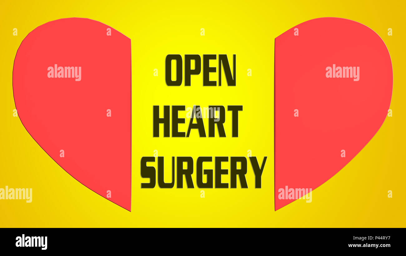 3D illustration of OPEN HEART SURGERY between red split heart, isolated on yellow gradient background - Stock Image