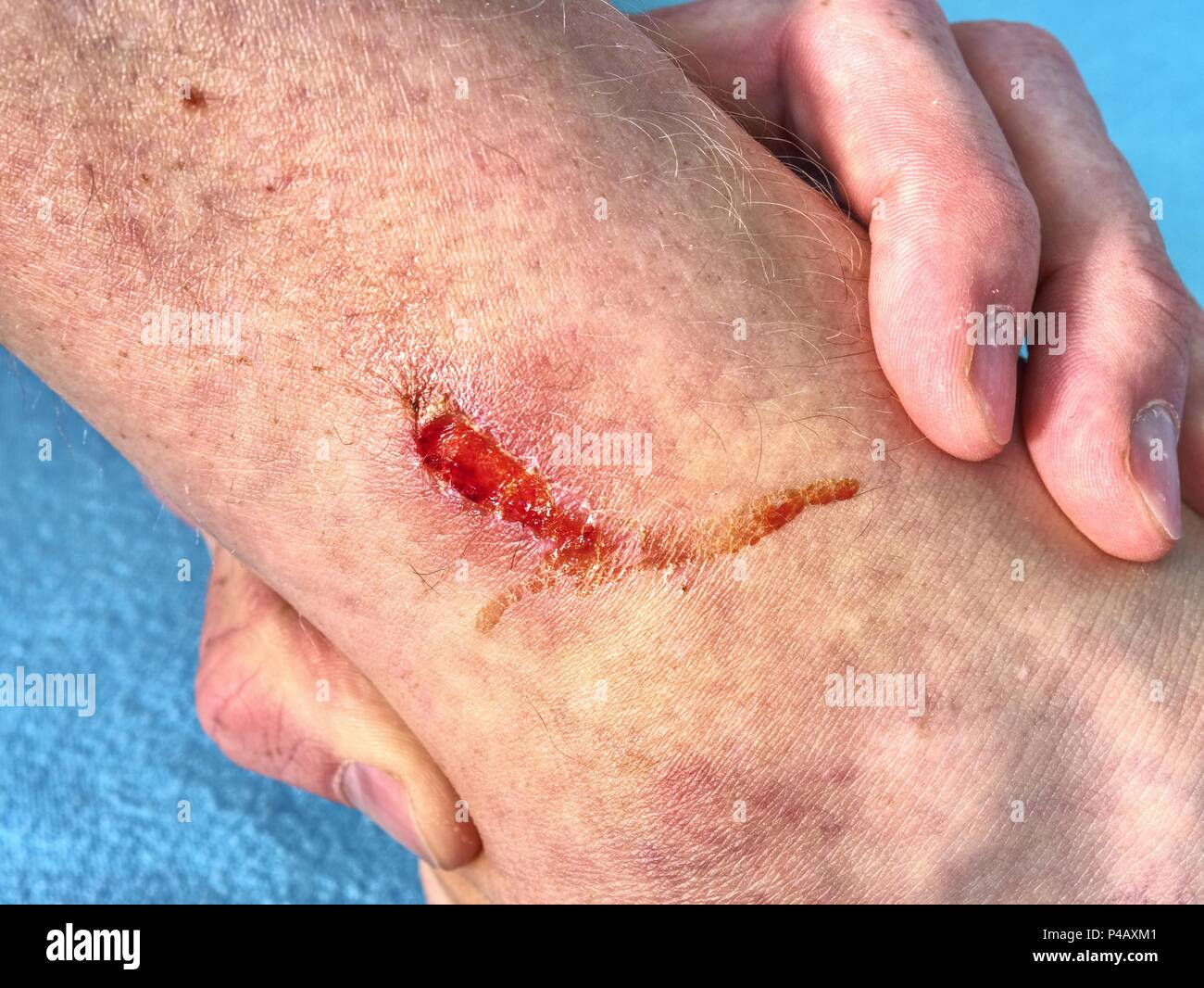 Hand embracing injured leg with painful place  Doctor hand