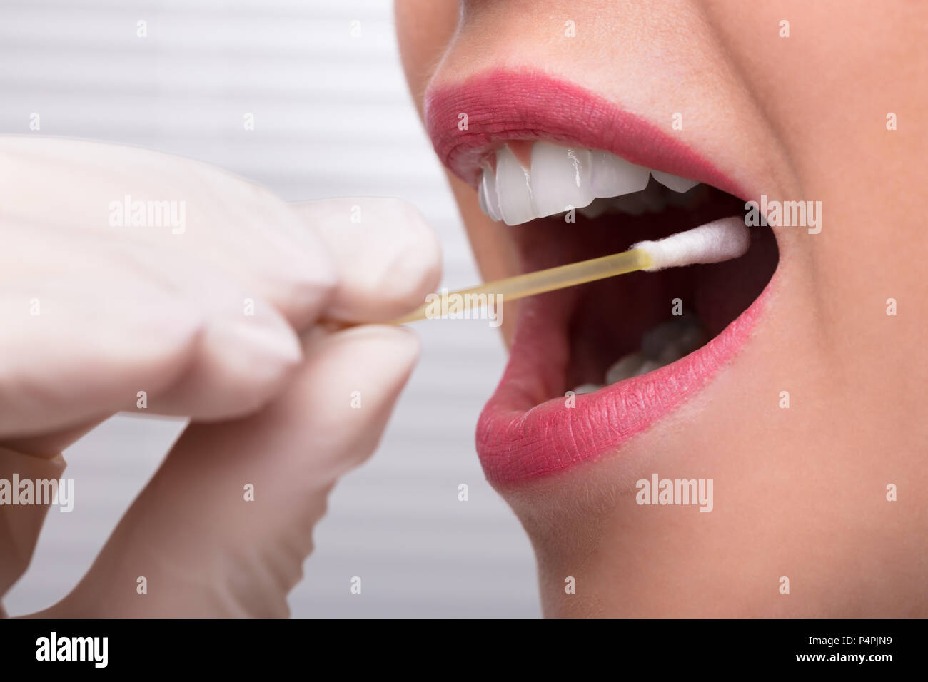 Dentist's Hand Taking Saliva Test From Woman's Mouth With Cotton Swab - Stock Image