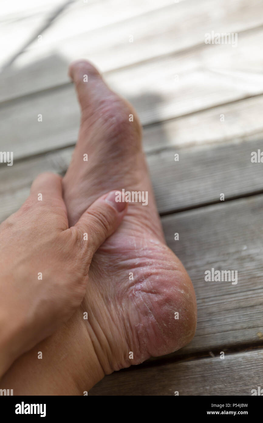 Close up view of adult man's bad athlete's foot and dry cracked heel - Stock Image