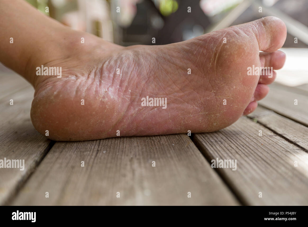 Athletes Foot High Resolution Stock