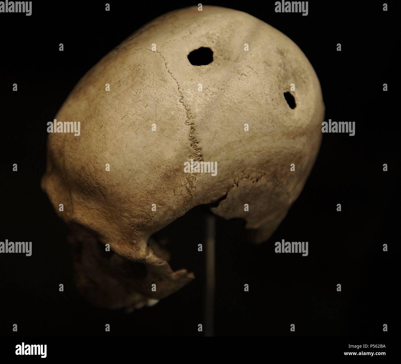 Trepanned skull of a man. 21-35 years old. 3500-3400 BC. From Dojringe Mose, Zealand. National Museum of Denmark. Copenhagen. Denmark. - Stock Image