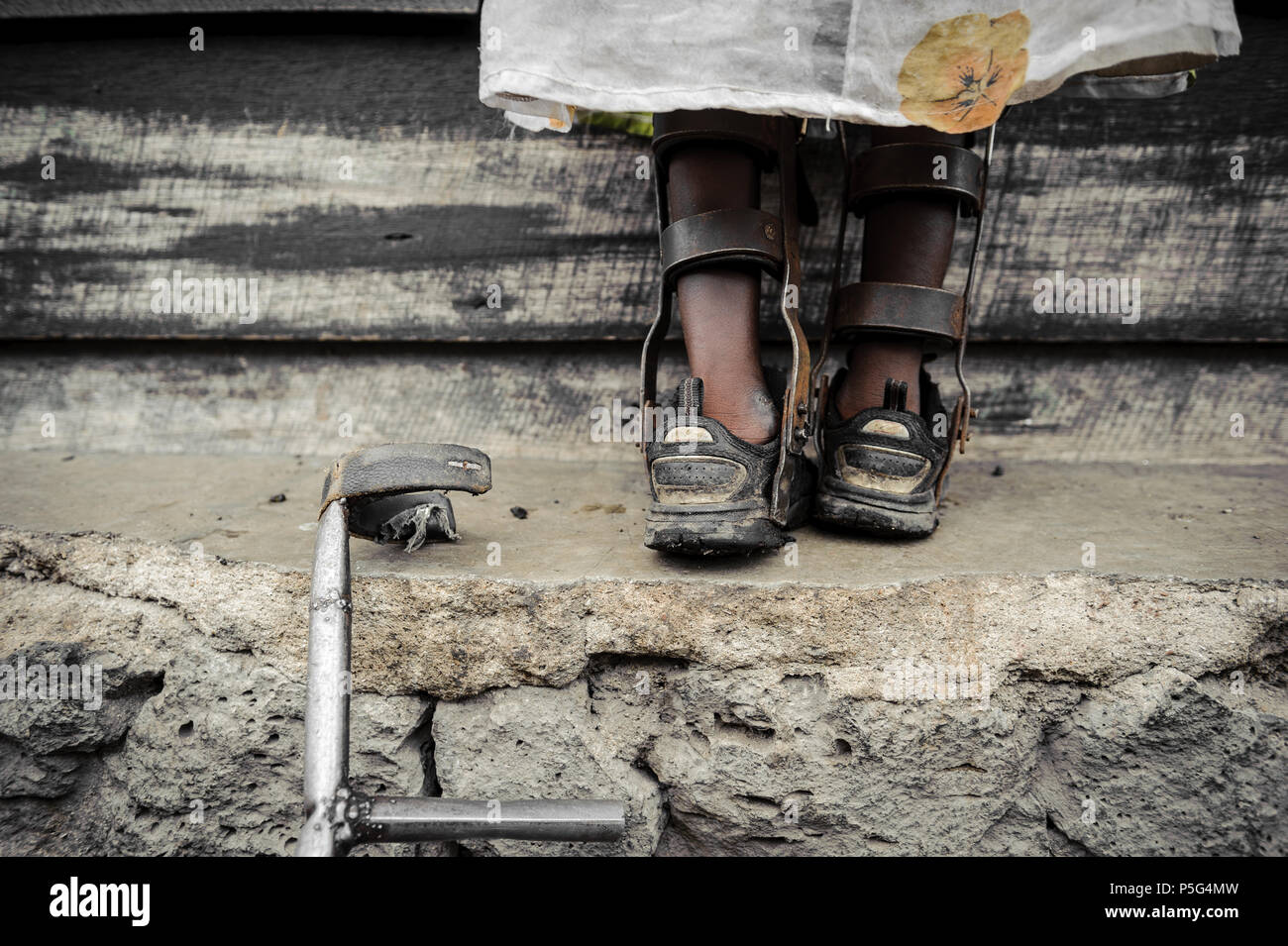 An 8 year-old girl fitted wit callipers by an NGO in Goma, DRC, that assists children suffering from the effects of the polio virus - Stock Image