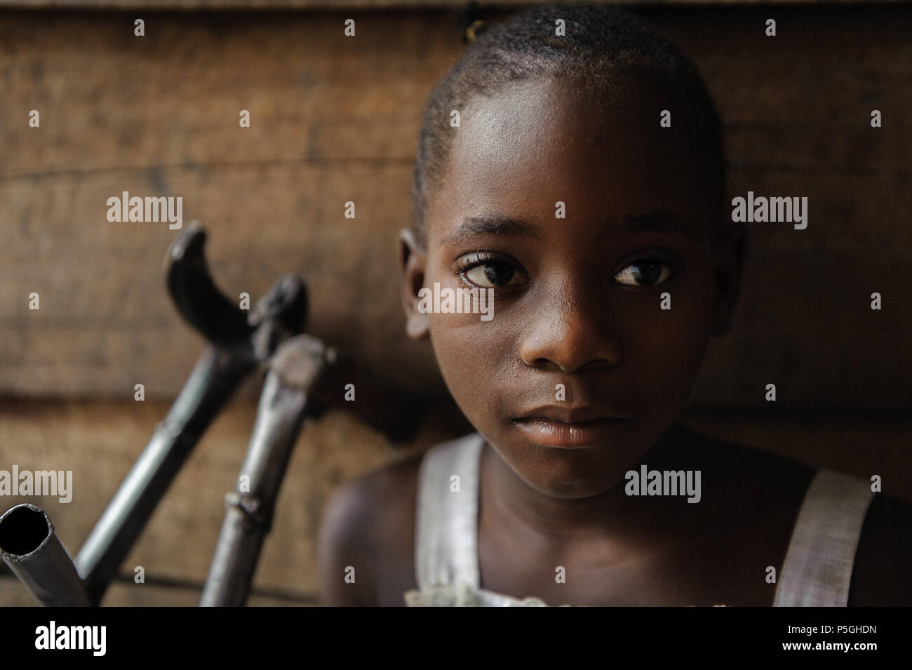 A young polio sufferer receives assistance from an NGO in Goma, North Kivu, Democratic Republic of Congo - Stock Image