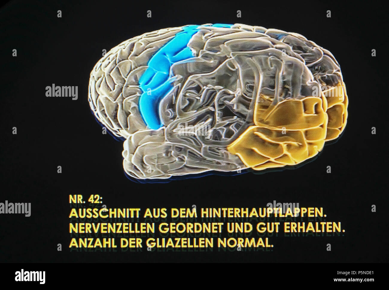 A three-dimensional hologram of the brain of Albert Einstein (1879-1955) is shown in the exhibition 'The Brain - Intelligence, Awareness, Feeling' in the LWL Museum of Natural History, Münster, Germany, Jujy 2018 (Lender: Muetter Museum, Philadelphie) - Stock Image
