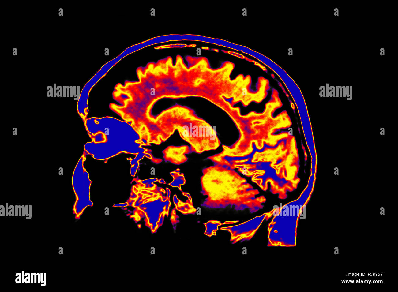 Colorized MRI Image Of Head Showing Brain - Stock Image