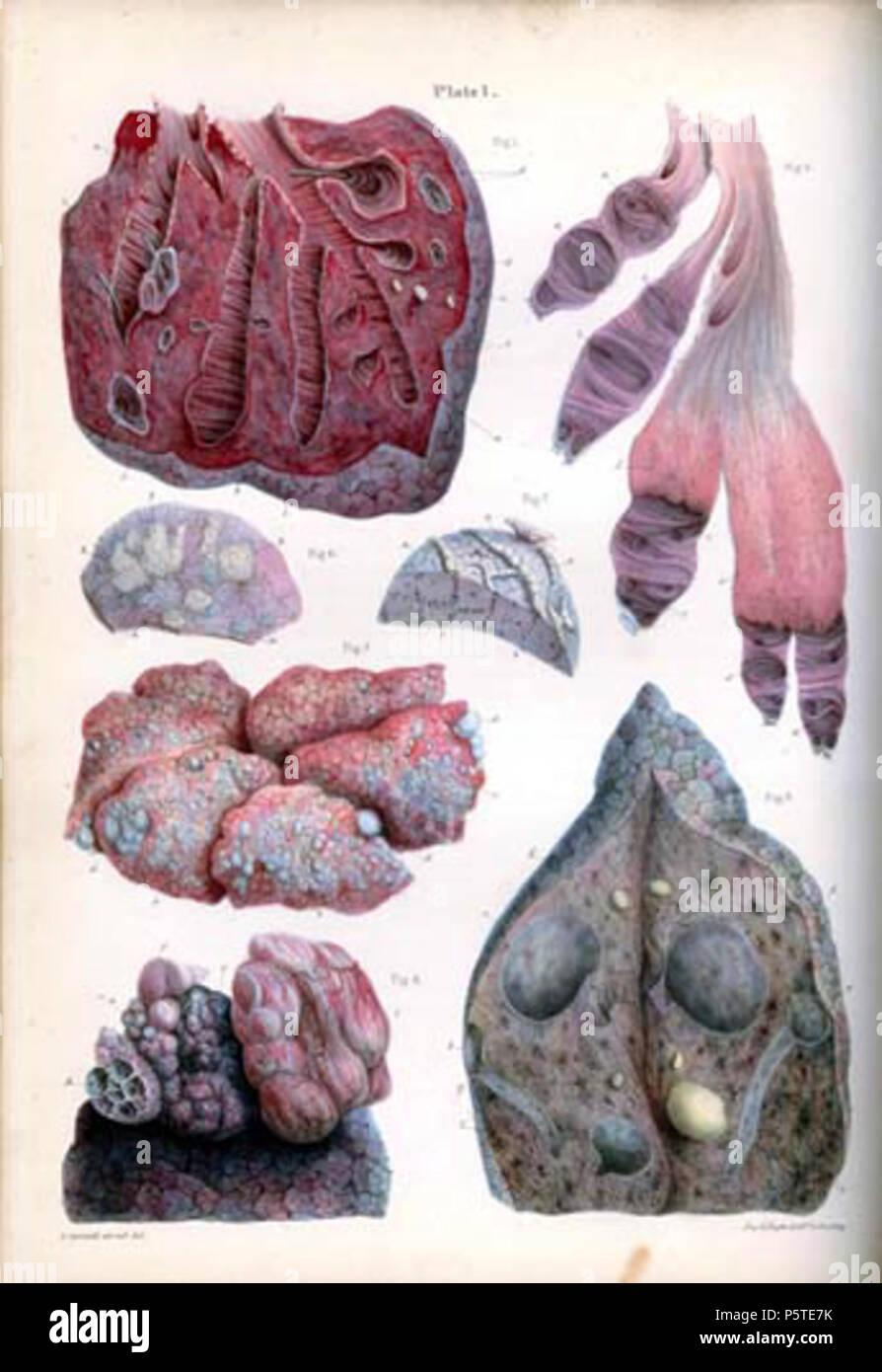 N/A. English: Pathological Anatomy Illustrations of the Elementary ...