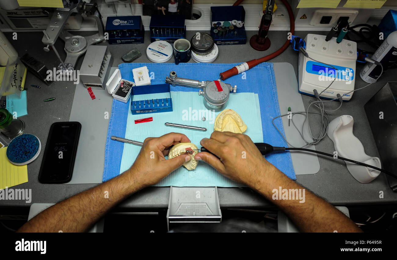 Edward Ibarra, a dental laboratory technician with the 1st Special Operations Dental Squadron, refines an implant at Hurlburt Field, Fla., April 18, 2016. The dental laboratory creates mouth appliances for patients prescribed by the dentists. Appliances may be permanent or removable depending on the treatment plan. (U.S. Air Force photo by Senior Airman Meagan Schutter) - Stock Image