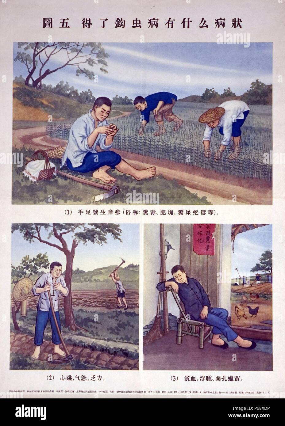Chinese poster shows three different images, the are designed to raise awareness of hookworm infections. Each image shows a farmer experiencing symptoms of the infection. Chinese characters are shown below each image, identifying typical signs of the infection. Dated c1940 - Stock Image