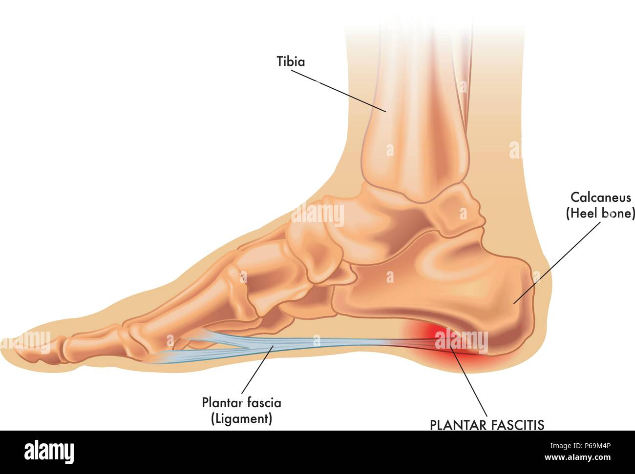 an vector medical illustration of the anatomy of a foot with the symptoms  of plantar fasciitis