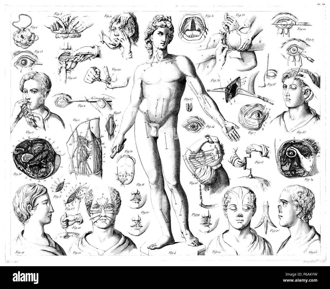 Operations on humans, Heck u. Henry Winkles - Stock Image