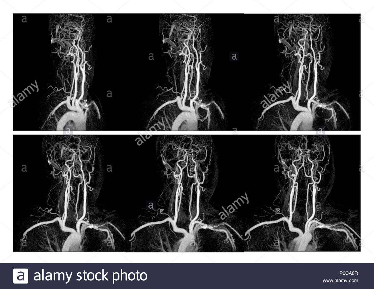 Brain Xray Black and White Stock Photos & Images - Alamy