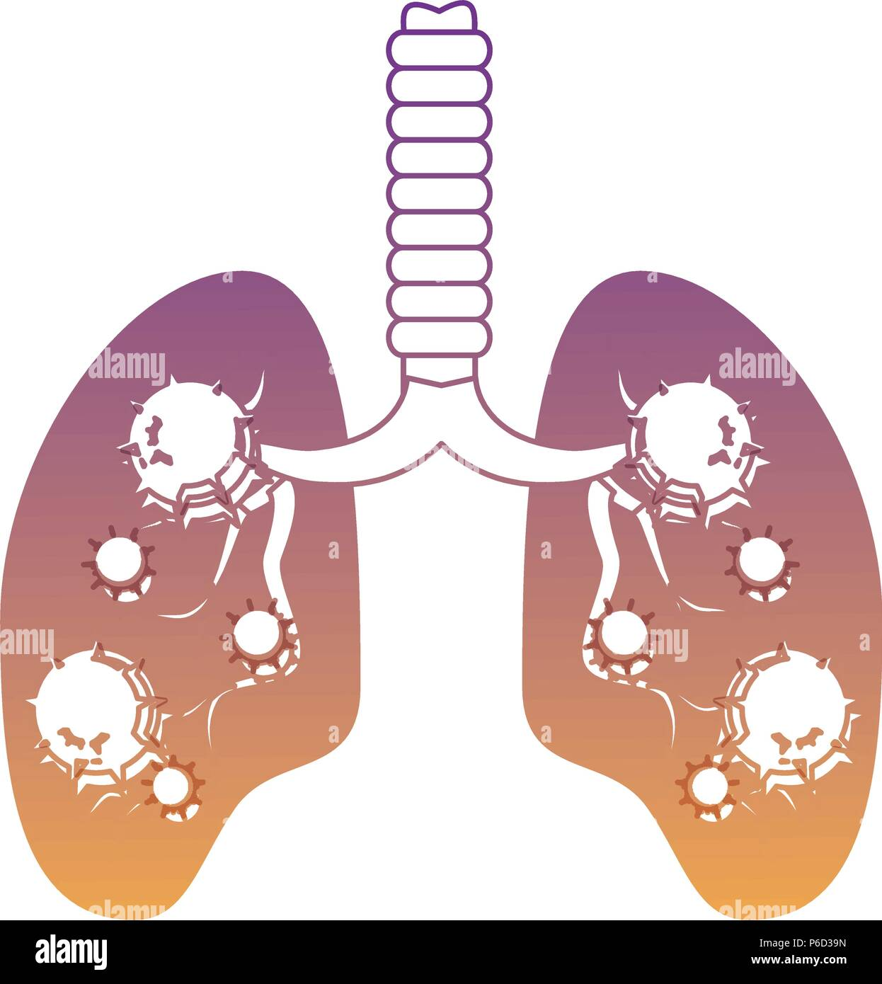 Lungs with an infection  over white background, vector illustration - Stock Image