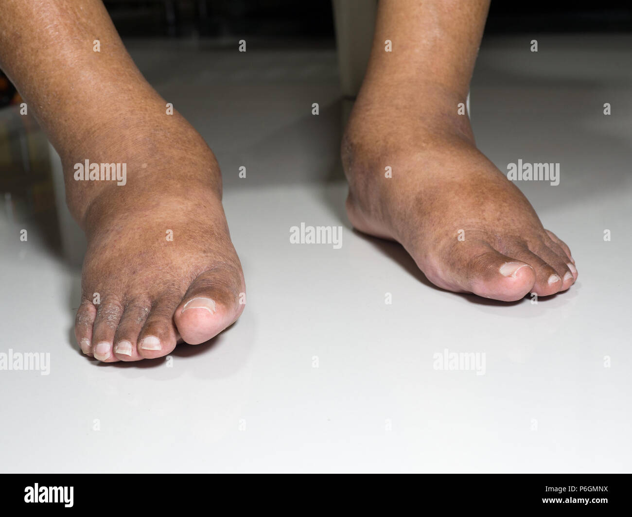 people with ugly feet