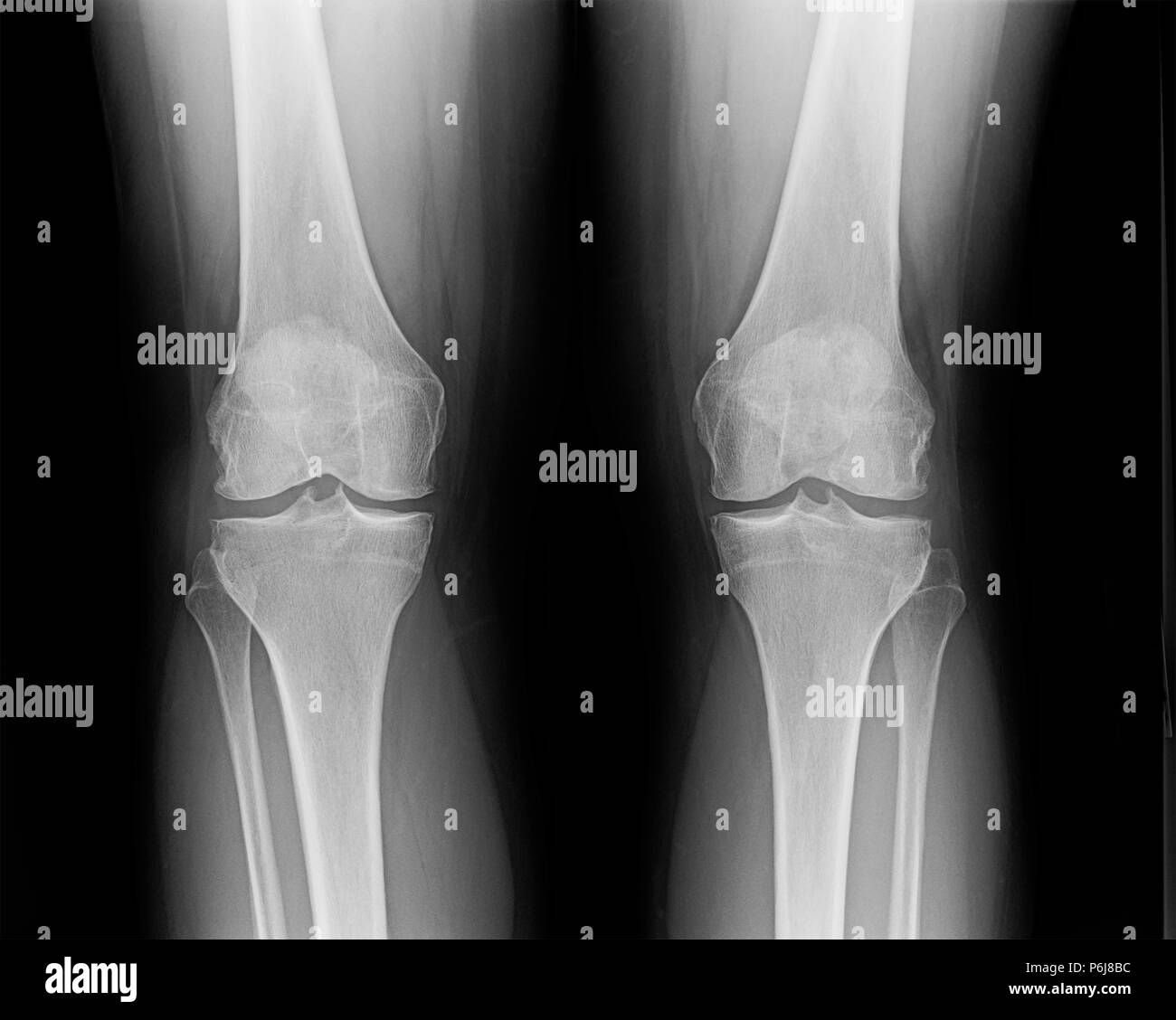 X-ray of knees of mature female suffering from minor osteoarthritis and bone spurs. Stock Photo
