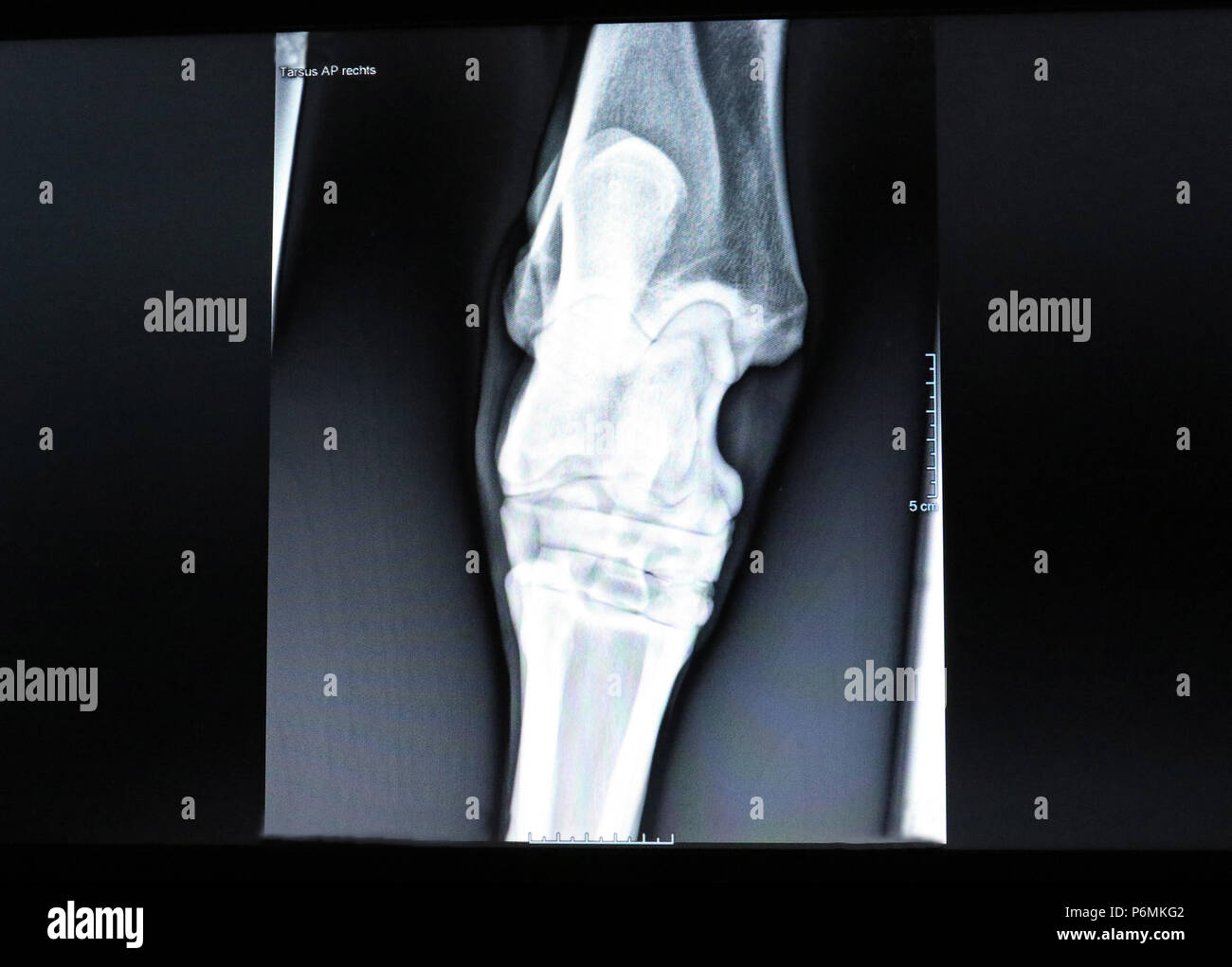 Melbeck, Roentgen picture of an ankle - Stock Image