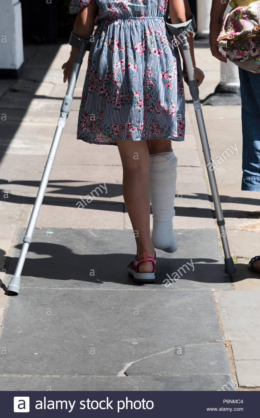 Young girl with a broken leg cast walking on crutches
