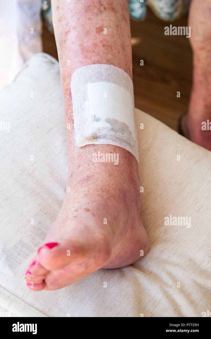 Elderly Woman With Skin Cancer On Legs Scar Showing After Removal Operation Plus Swollen Ankle Stock Photo Alamy