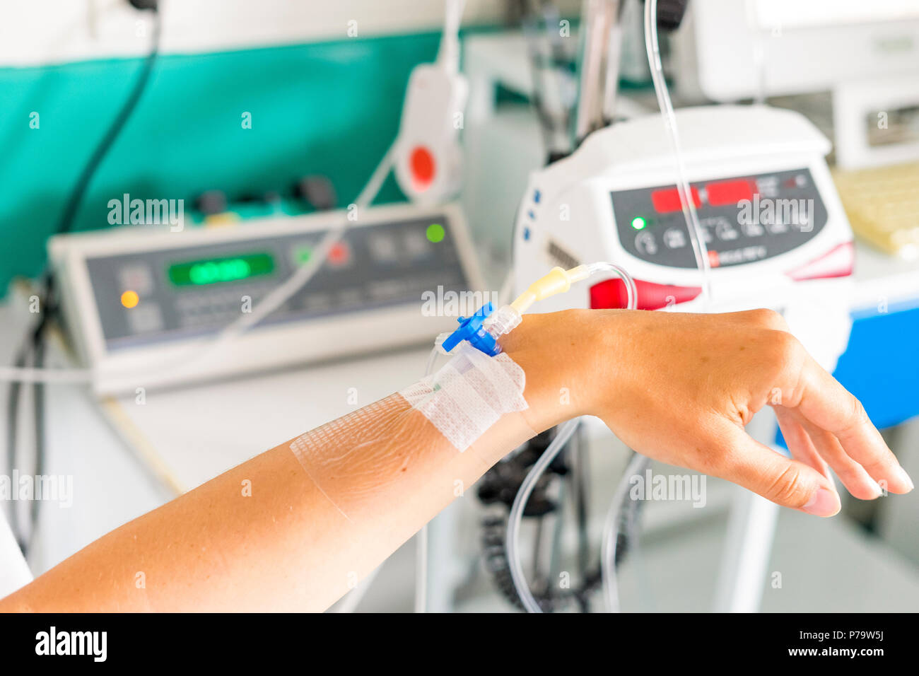 Hand with peripheral venous catheter and equipment to dose epidural during delivery - Stock Image