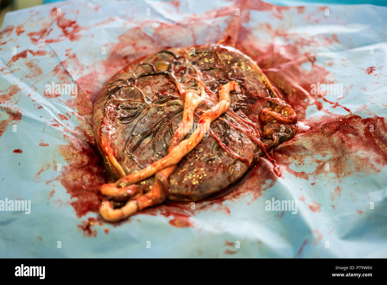 Placenta outside uterus just after childbirth in the hospital - Stock Image