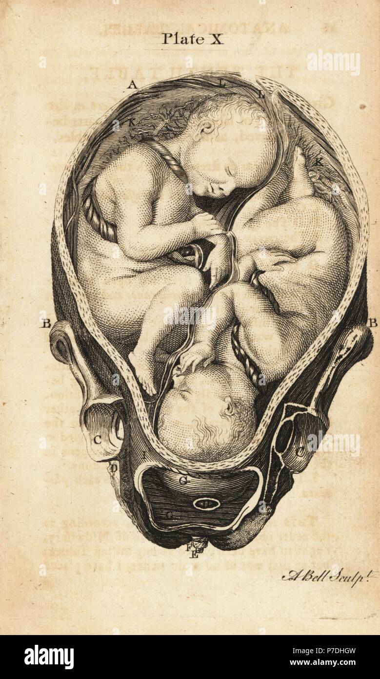 Front view of twins in utero at the start of labour. Copperplate engraving by Andrew Bell after an illustration by Jan van Rymsdyk from William Smellie's A Set of Anatomical Tables, Charles Elliot, Edinburgh, 1780. - Stock Image