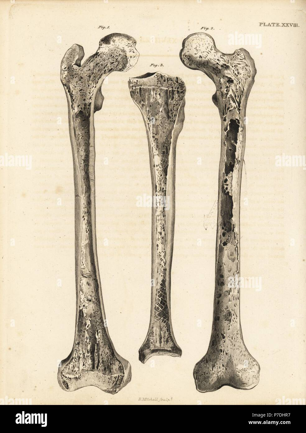 Longitudinal Sections Of The Femur 12 And Of The Tibia 3