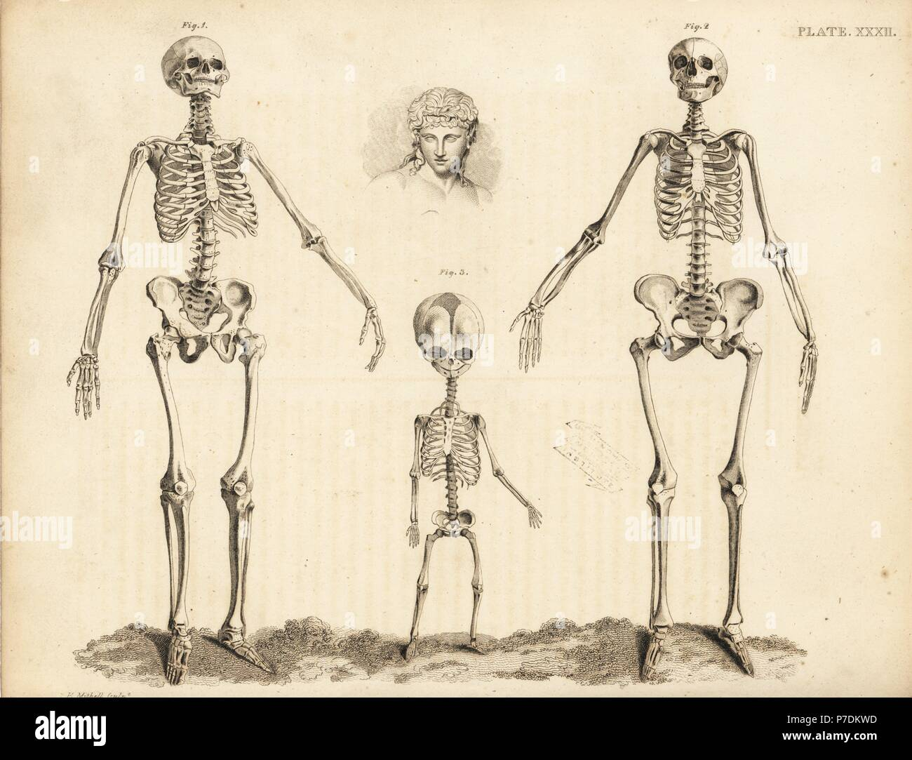 Comparison Of The Skeletons Of The Human Male Female And Foetus At