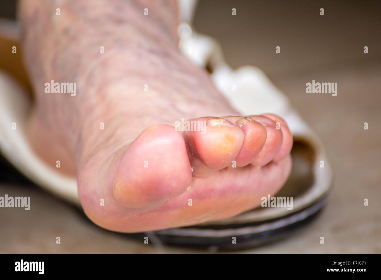 Illice finger with whitlow in foot of elderly woman with