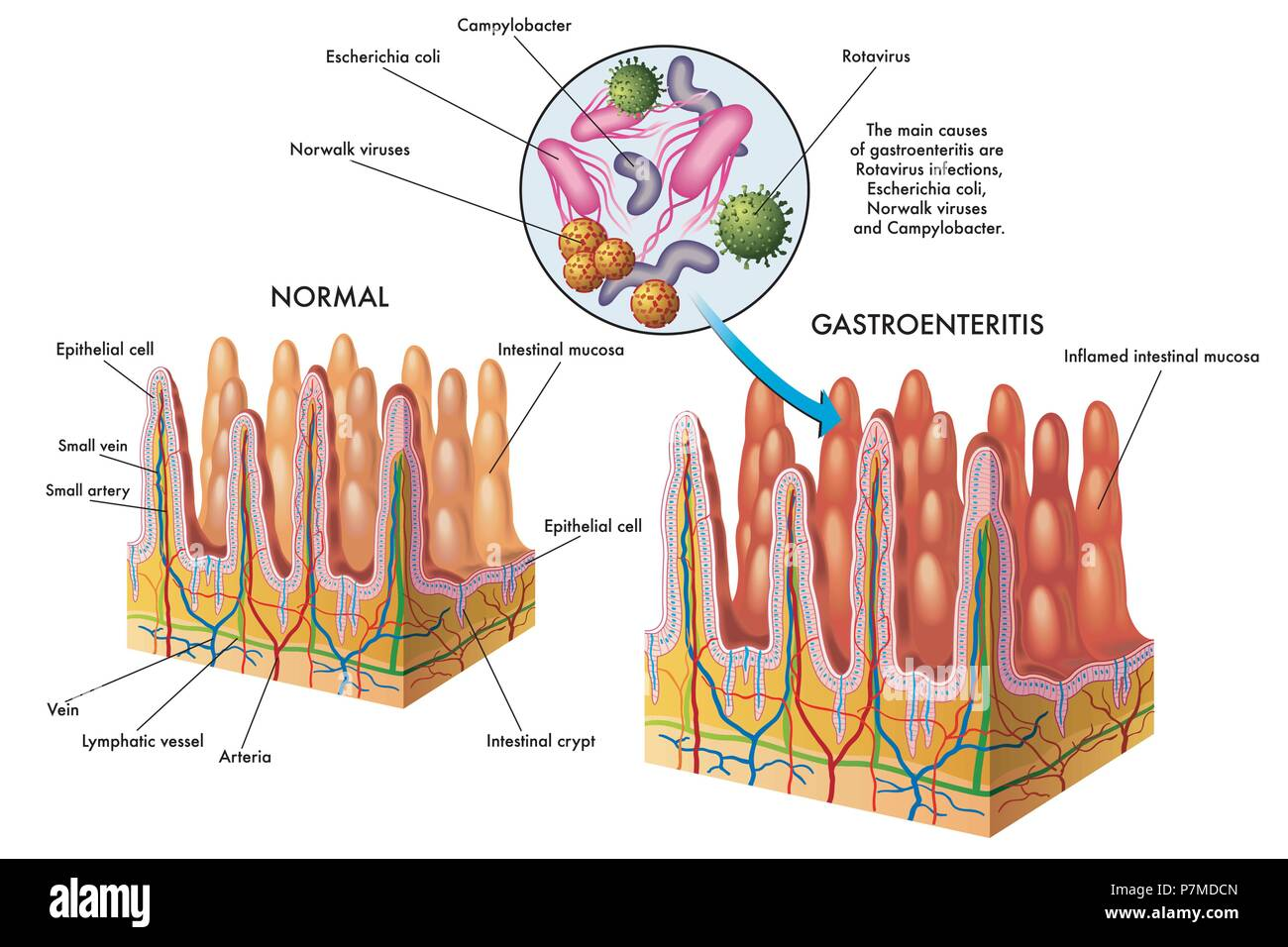 vector medical illustration of the main causes of gastroenteritis - Stock Image