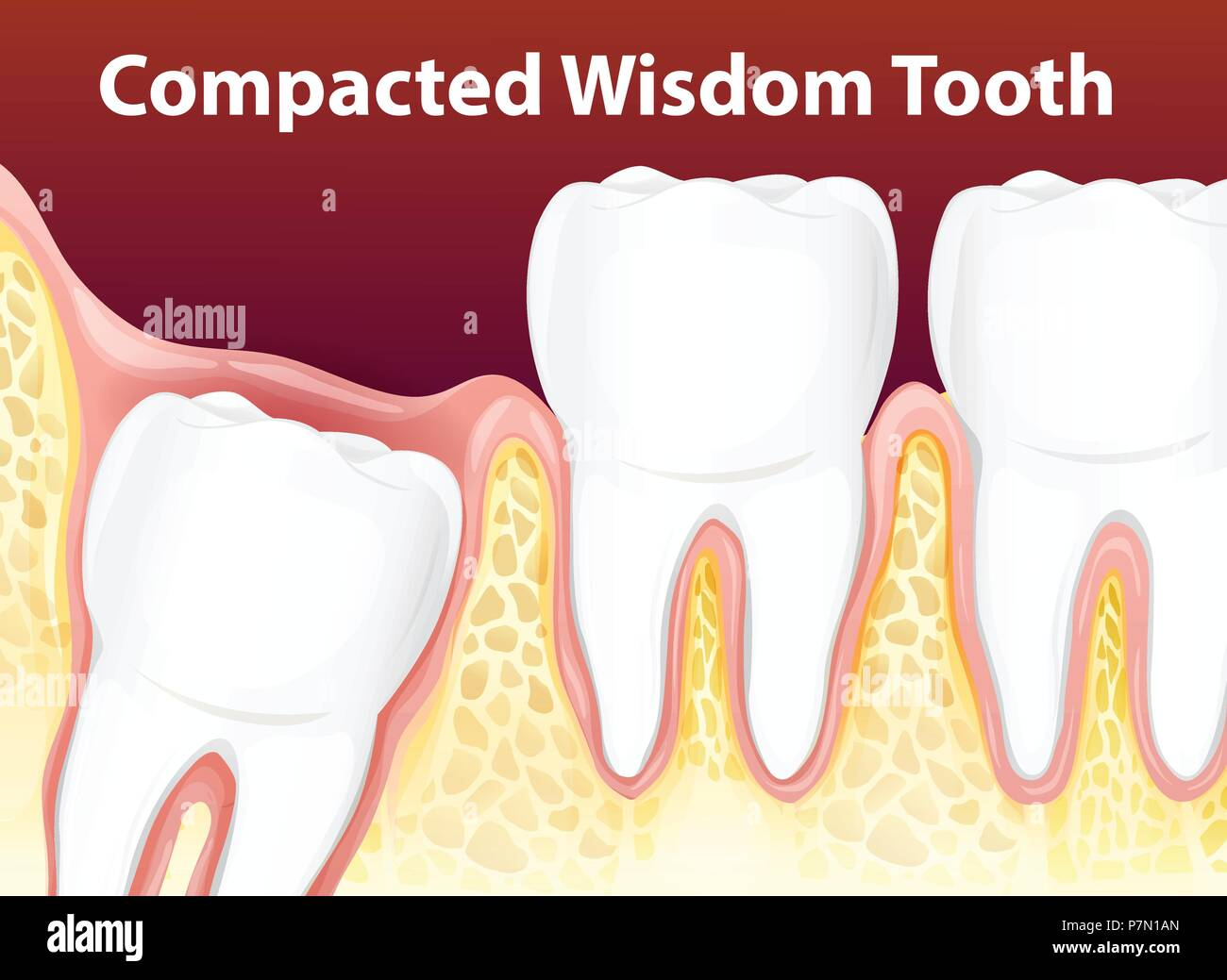 compacted wisdom tooth diagram illustration stock vector art rh alamy com diagram of impacted wisdom teeth Wisdom Teeth Surgery