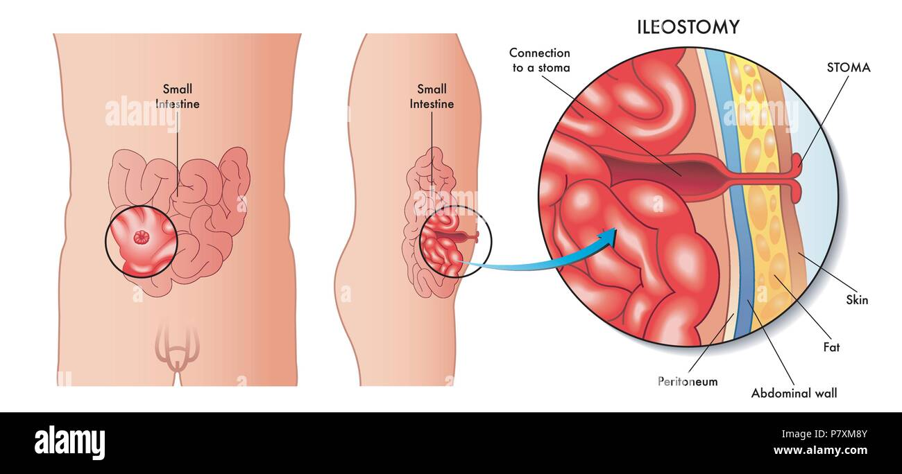 vector medical illustration of an operation of ileostomy - Stock Image
