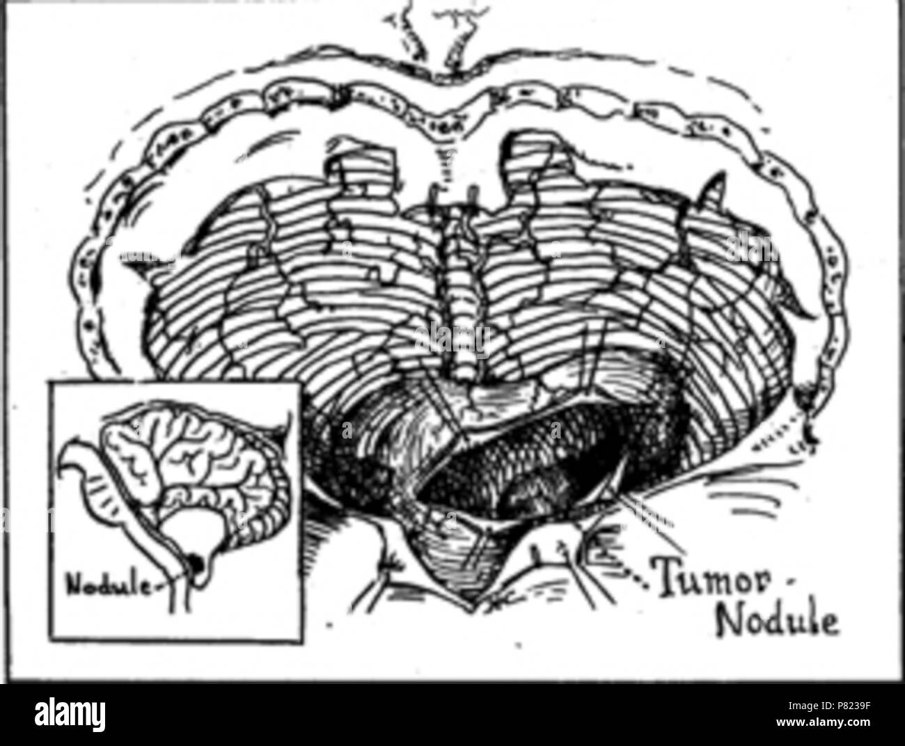 English: Picture from article of founder of world and american neurosurgery Harvey Cushing (died 1939) which shows cerebellum and hemangioblastoma (Cushing`s case report) . 14 April 2012 63 Cerebellar hemangioblastoma - Stock Image