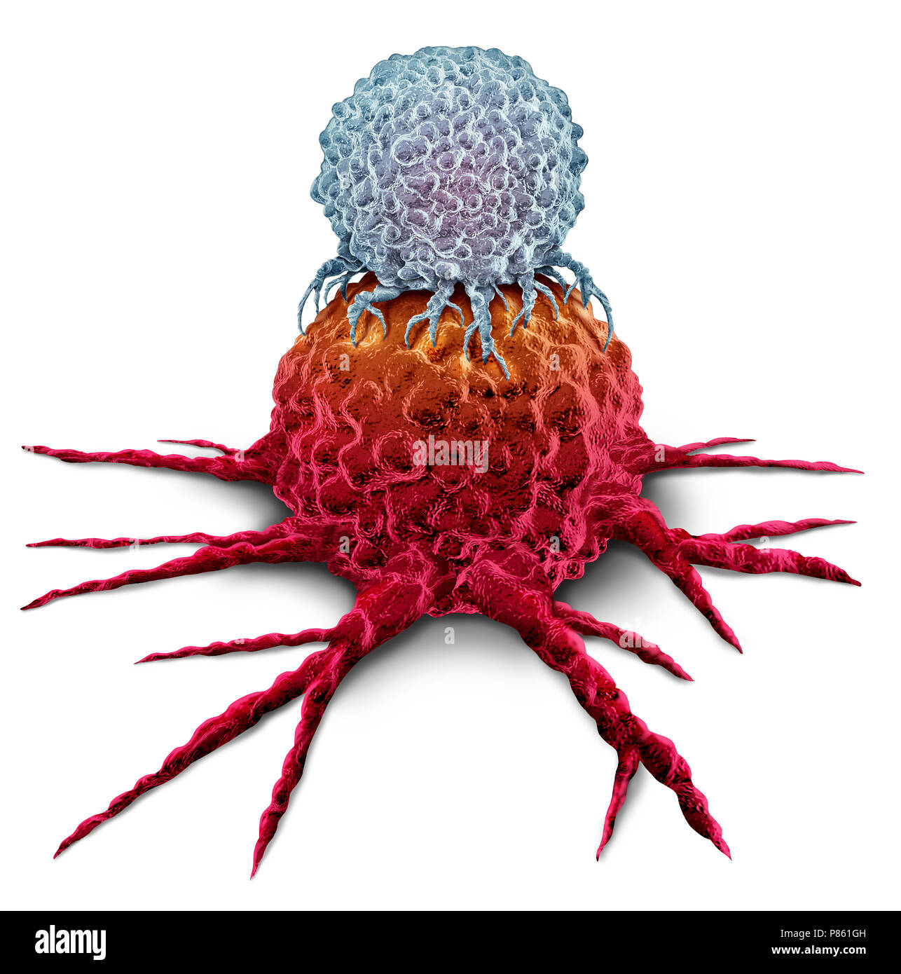 T cell attacking a cancer tumor as an Immunotherapy immune system therapy concept as a biomedical or biomedicine oncology treatment. - Stock Image