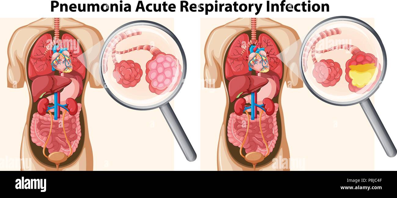 Pneumonia Acute Respiratory Infection illustration - Stock Vector