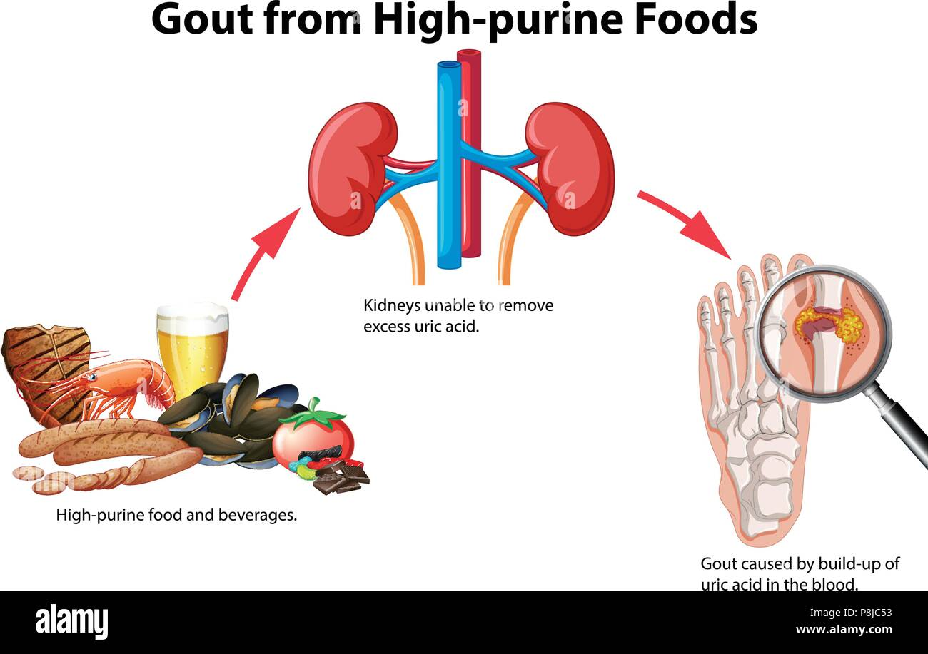 Gout from High-purine Foods illustration Stock Vector