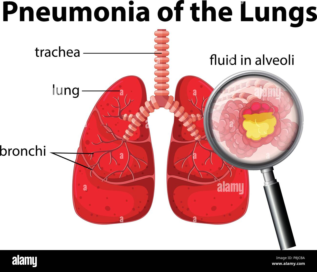 Pneumonia of the Lungs Diagram illustration - Stock Image