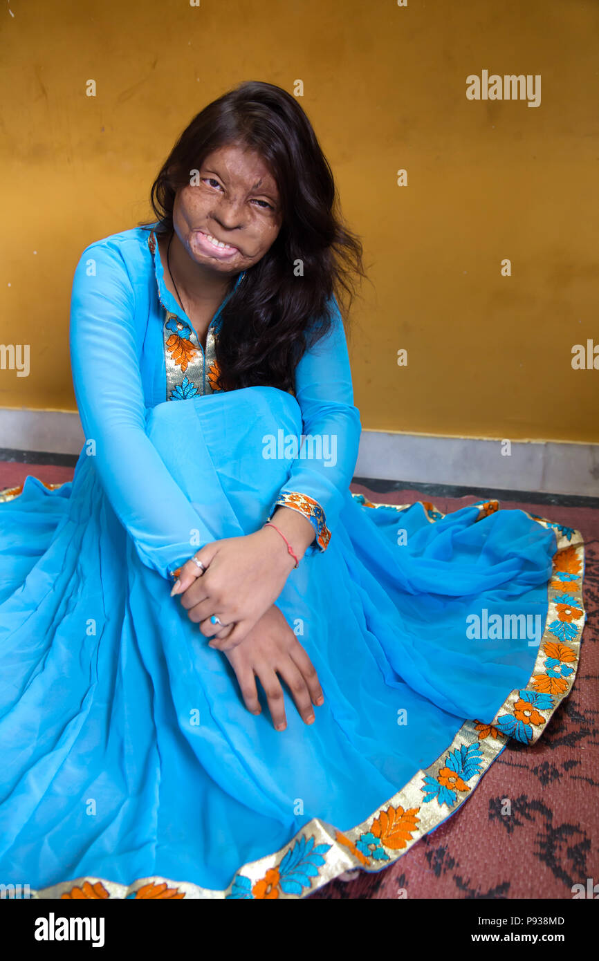 Roopa, victim of Acid attack in Delhi (from Stop Acid Attacks campaign, India) - Stock Image