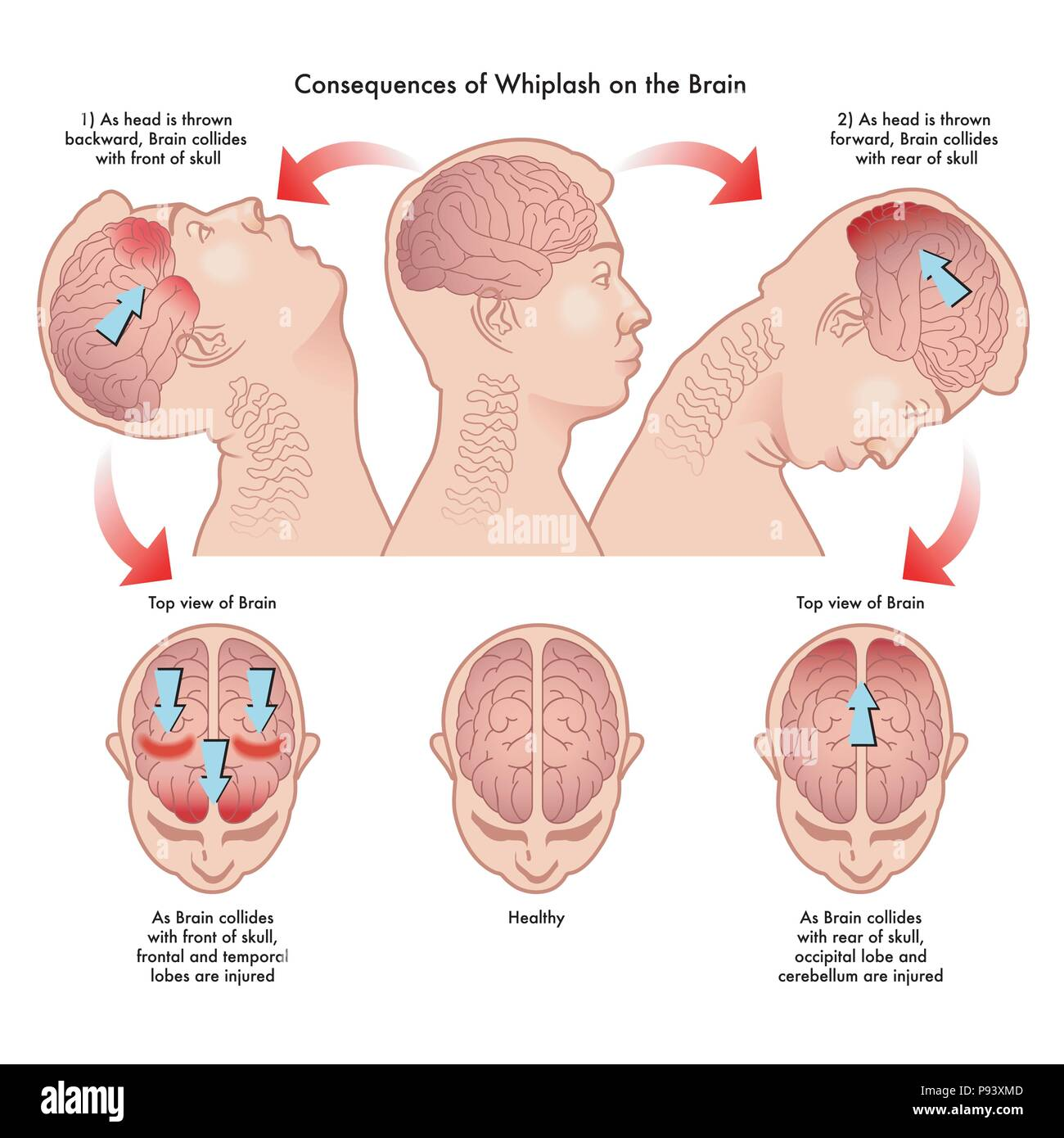 vector medical illustration of the consequences of whiplash on the brain - Stock Vector