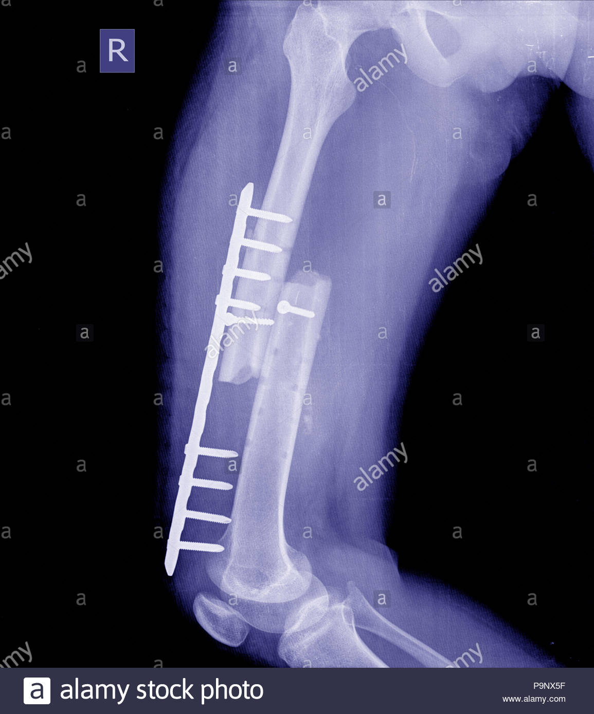 Femoral Neck Fracture Stock Photos & Femoral Neck Fracture