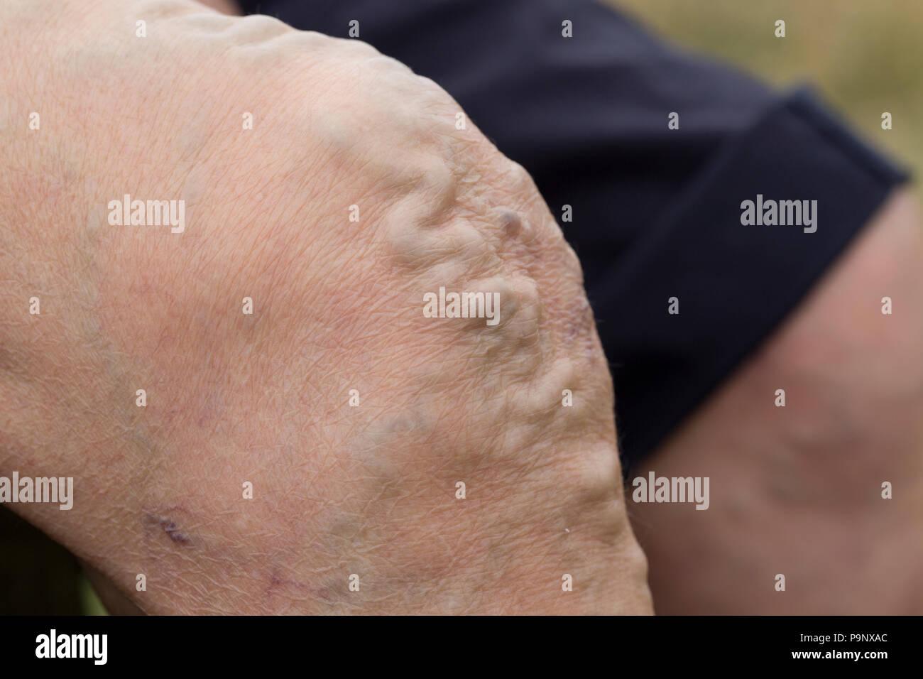 Enlarged varicose veins on knee of senior woman UK - Stock Image