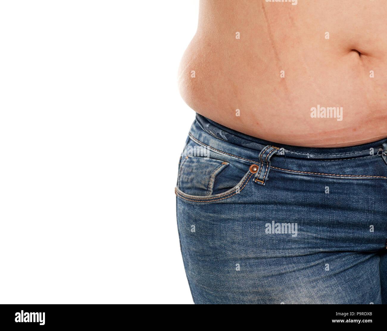 Ragazza di peso eccessivo e pancia grassa Fotografie Stock Ragazza e grasso di peso eccessivo-6686