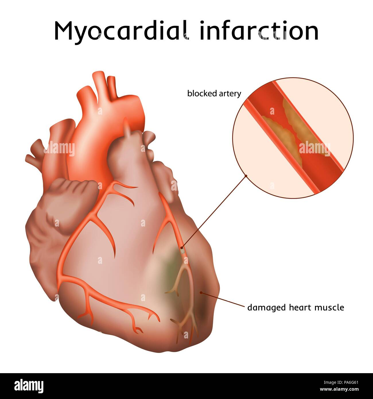 Heart attack (myocardial infarction), illustration. A blocked coronary artery has led to heart muscle damage. - Stock Image