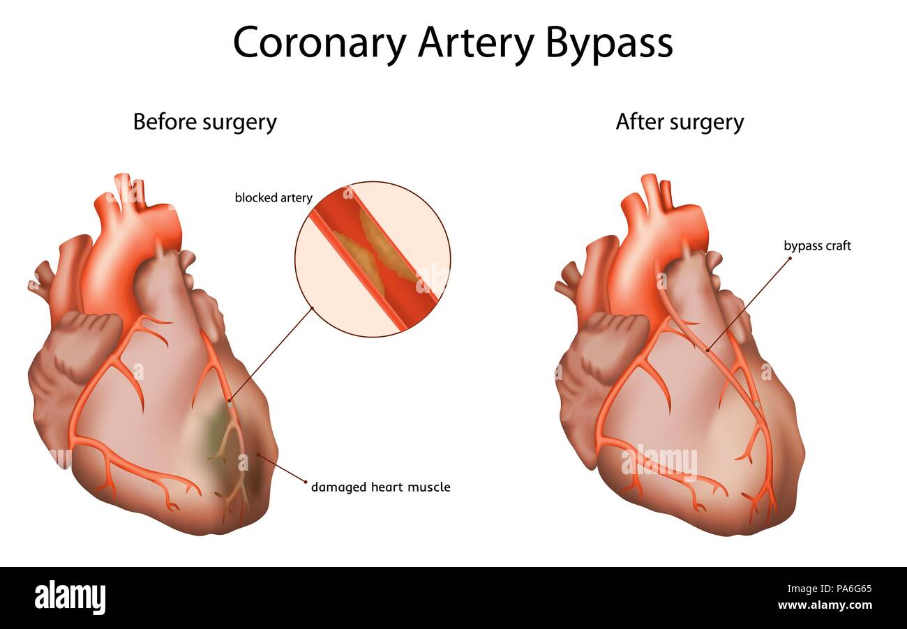 Coronary artery bypass, illustration. The bypass graft restores normal blood flow to an obstructed coronary artery. - Stock Image