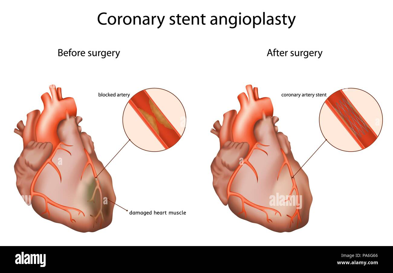 Coronary stent angioplasty, illustration. The coronary stent opens a clogged heart artery. - Stock Image